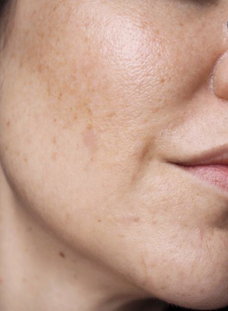 how to get rid of hormonal pigmentation